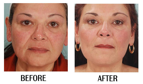 HIFU Facelift Perth   Non Surgical, Fast Results, Pay With
