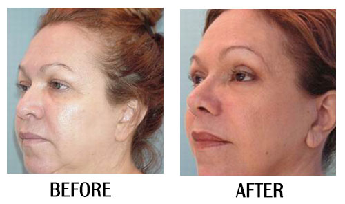 HIFU Facelift Perth   Non Surgical, Fast Results, Pay With AfterPay